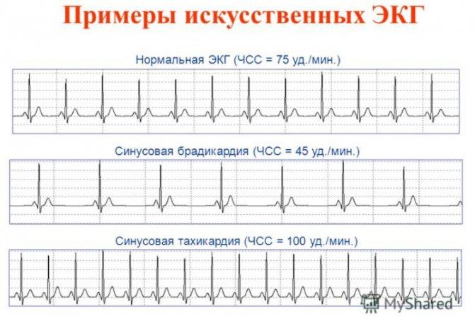 Что такое синусовый ритм сердца на экг