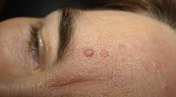 Кератома – что это такое, как лечить? себорейная, фолликулярная кератома, кожный рог – фото