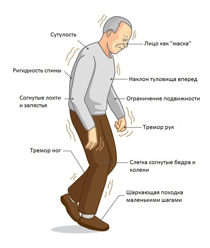 Болезнь паркинсона: симптомы и лечение, прогноз для жизни