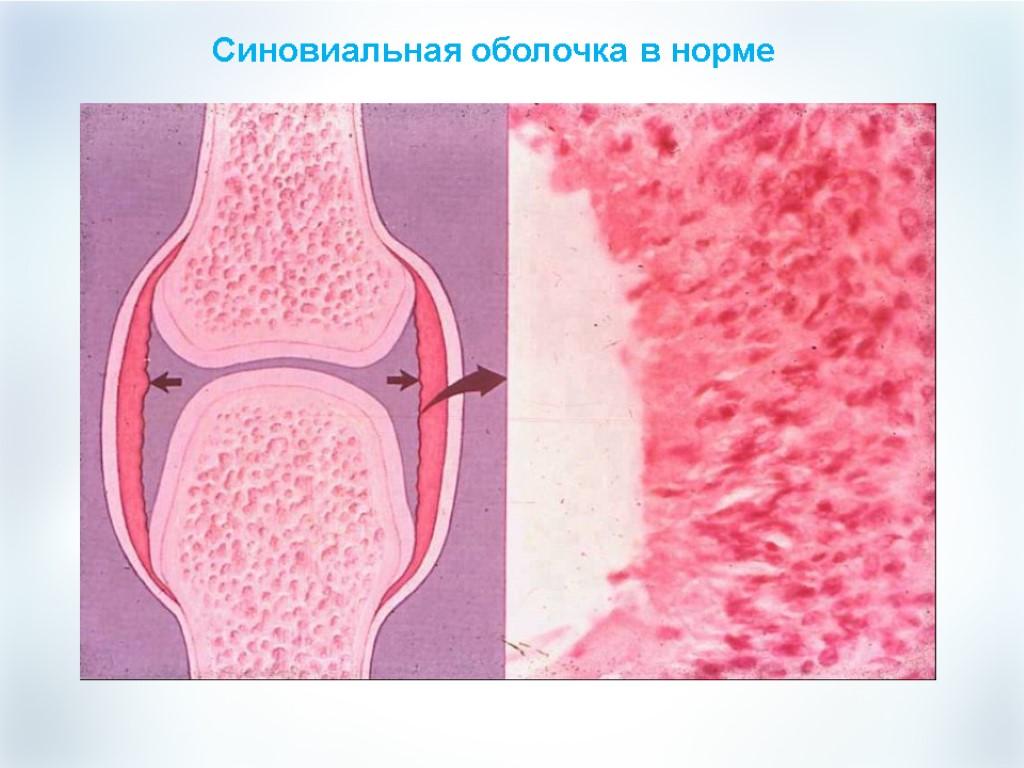 Как восстановить синовиальную жидкость?