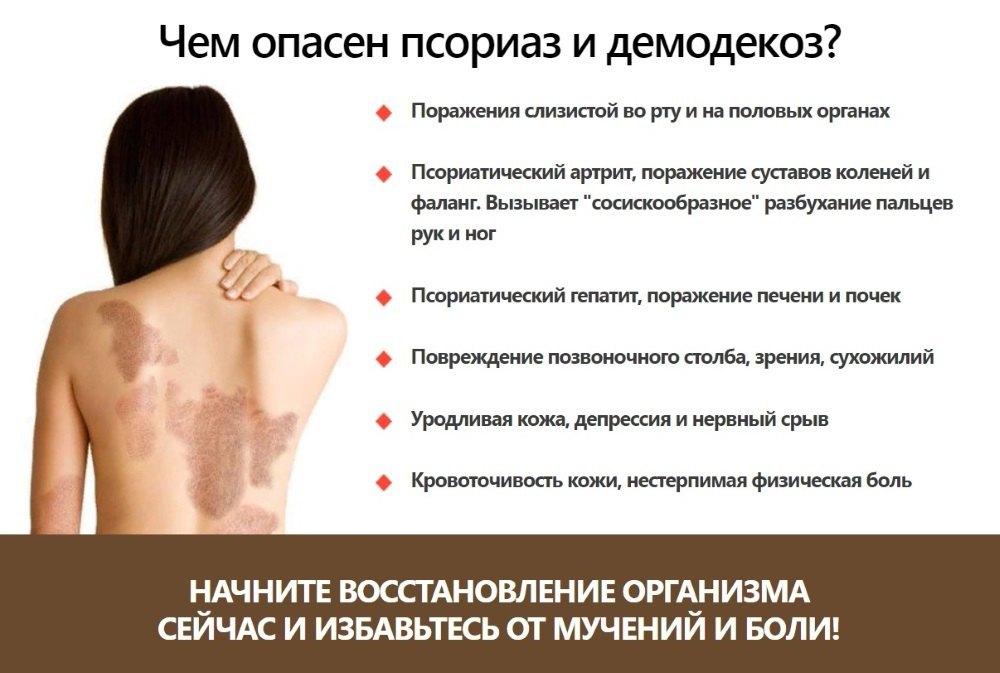 Псориаз, что это такое? симптомы и лечение, профилактика обострения псориаза