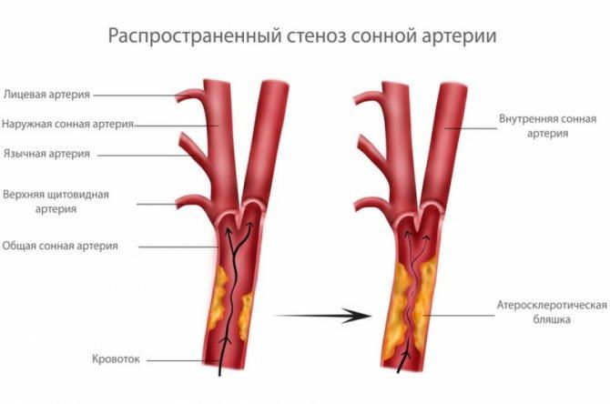 Брахиоцефальные сосуды и их патологии