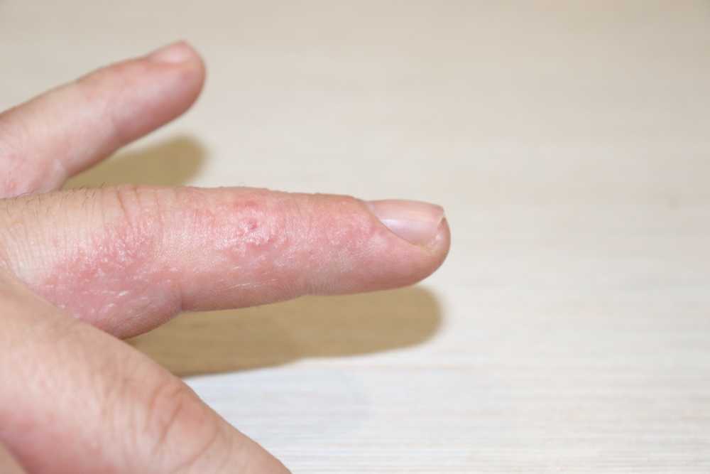 Микоз. что такое микоз? способы лечения микоза. грибковые заболевания. | всё о медицине