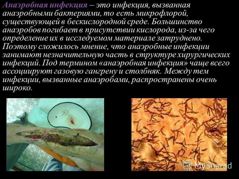 Анаэробная инфекция. классификация, диагностика, лечение. - alexmed.info