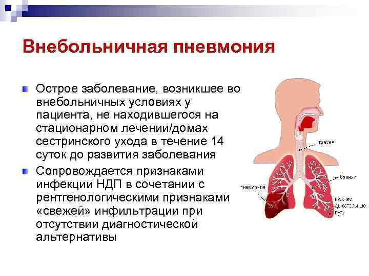 Внебольничная (нижнедолевая) пневмония