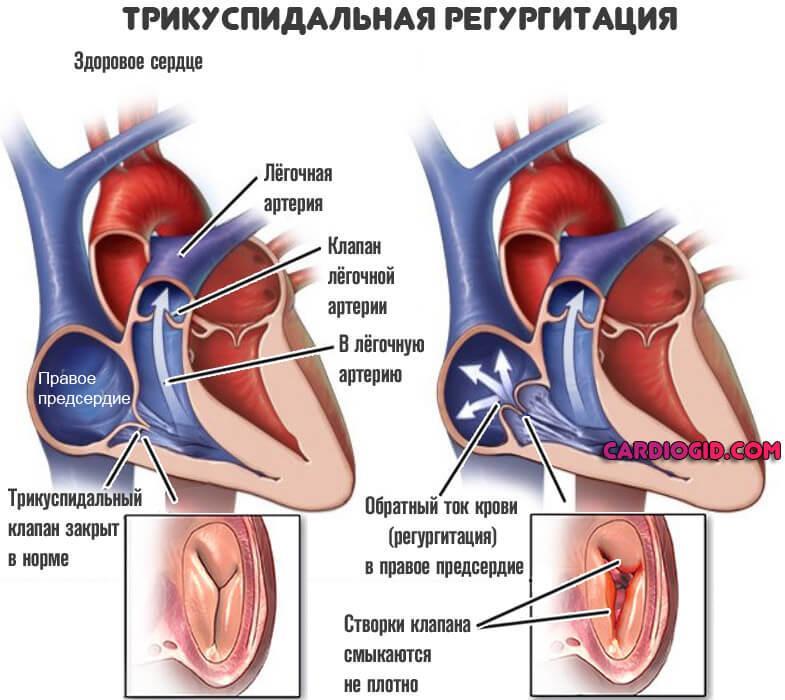Что такое регургитация 1 степени — сердце
