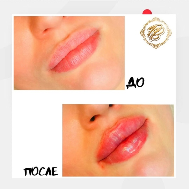 Аугментация губ: что необходимо знать, прежде чем сделать увеличение объема губ