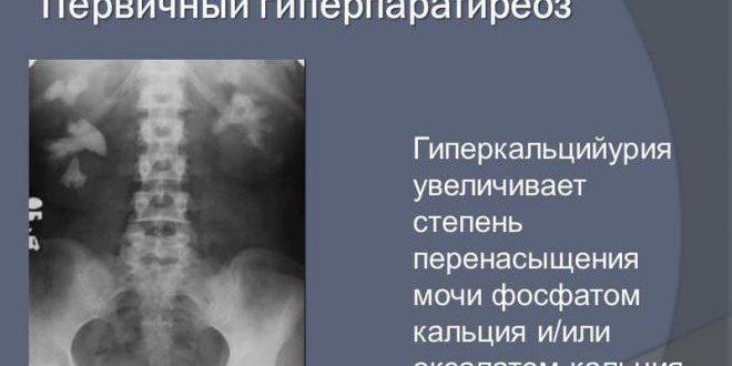 Гиперпаратиреоз: виды, симптомы и лечение