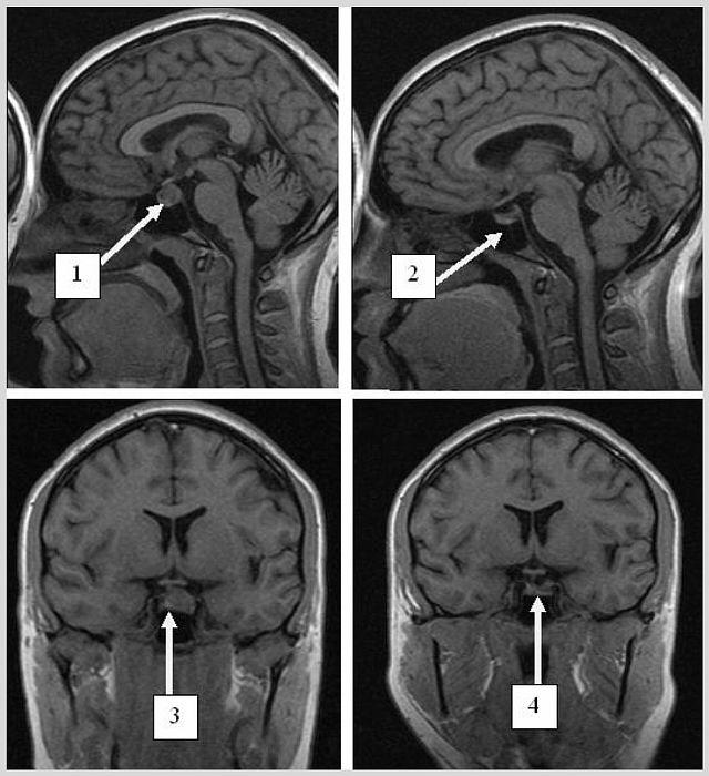 Микроаденома гипофиза: симптомы, лечение, чем опасна, прогноз, последствия, осложнения