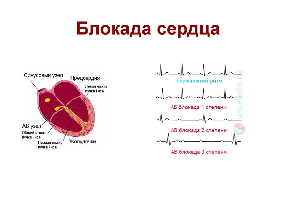 Неполная блокада правой ножки пучка гиса на экг и полная блокада пнпг: симптомы и лечение