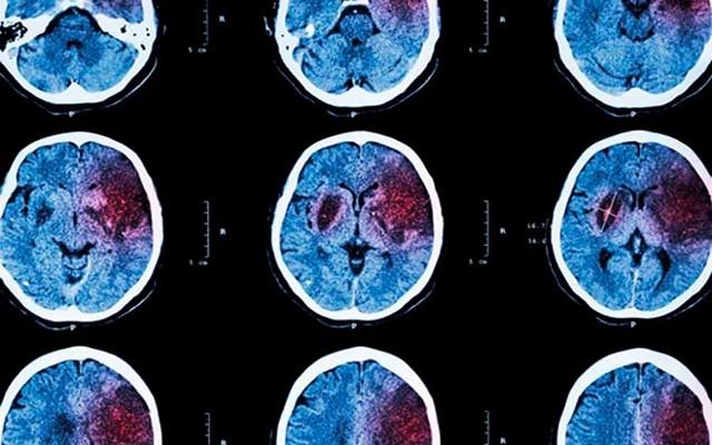 Кровоизлияние в мозг: симптомы, причины, лечение и последствия