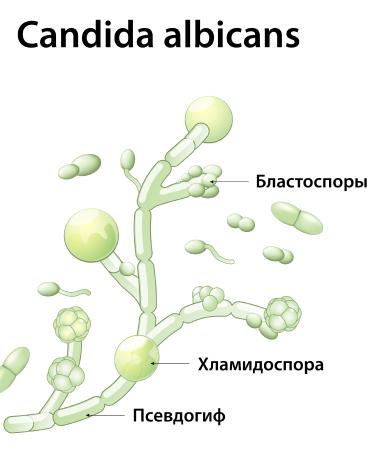Сandida albicans - что это такое у женщин и мужчин: лечение