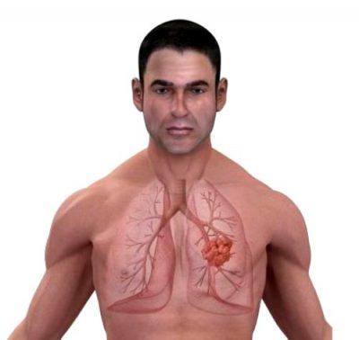 Эмфизема легких: что это такое, симптомы, лечение, прогноз жизни pulmono.ru эмфизема легких: что это такое, симптомы, лечение, прогноз жизни