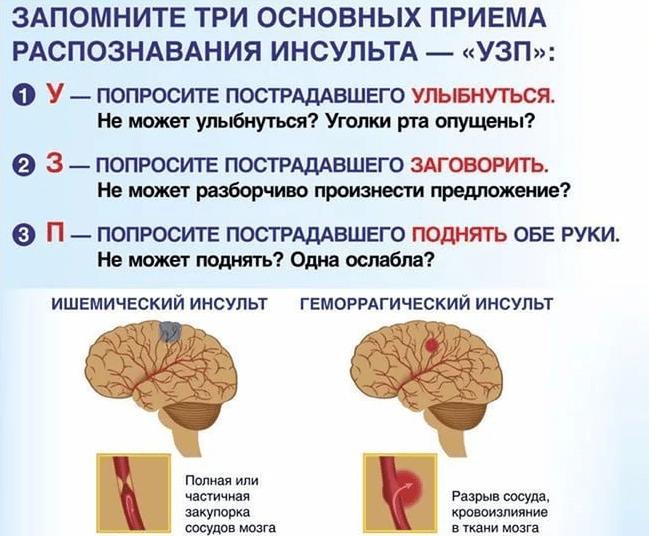 Последствия геморрагического инсульта, сколько живут при поражении левой и правой стороны головного мозга, каковы прогнозы на выздоровление?