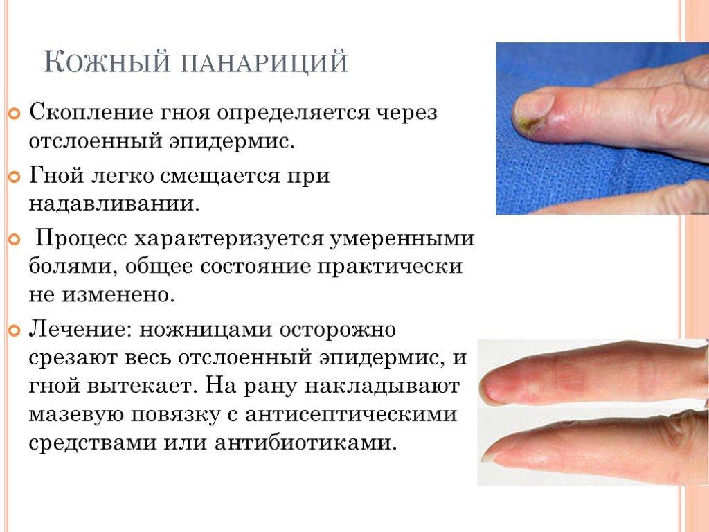 Панариций на пальце руки, ноги, формы панариция, симптомы и лечение панариция
