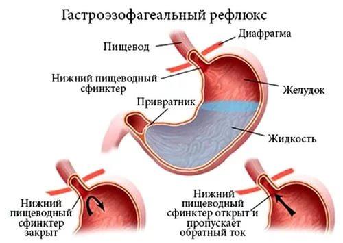 Что такое эзофагит