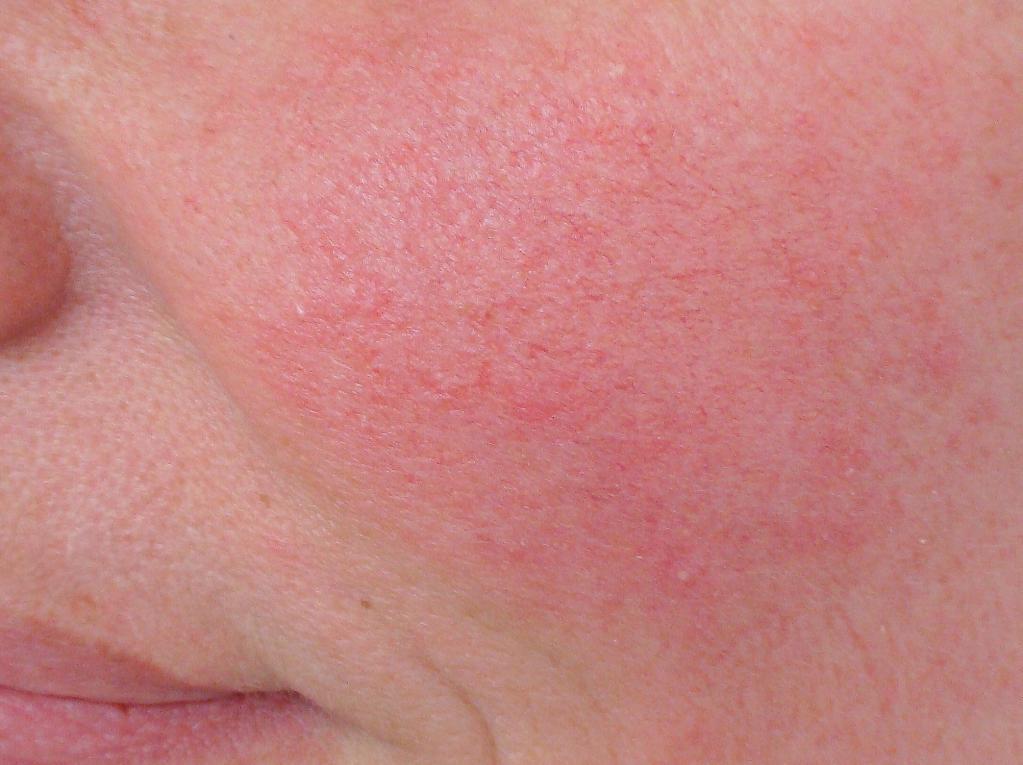 Гиперемия кожи - причины покраснения. что такое гиперемия кожи и как лечить, фото