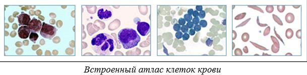 Plt в анализе крови – что это такое, и что влияет на показатель?
