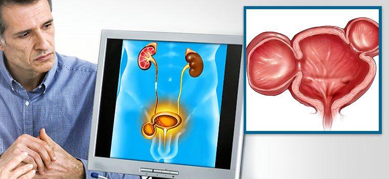 Дивертикул мочевого пузыря симптомы лечение