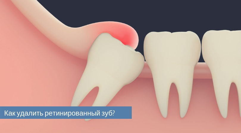 Что такое ретенция зуба и каковы виды; причины и возможные симптомы; лечение и удаление ретинированных зубов