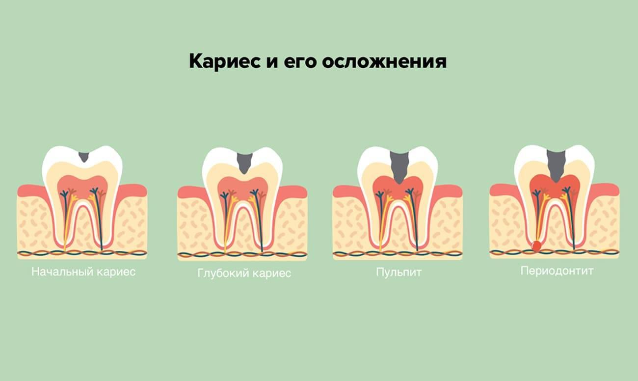 Что такое пульпит зуба и как лечить это заболевание?