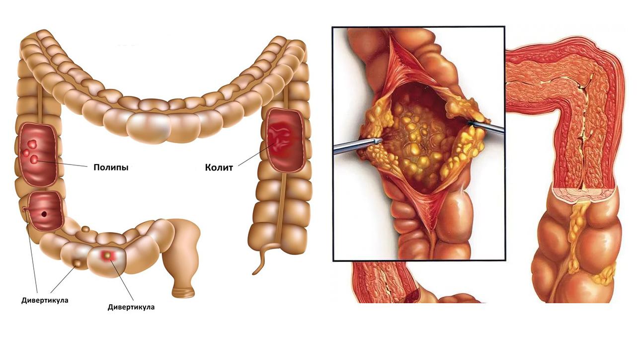 Атония кишечника - симптомы, диагностика, лечение, профилактика