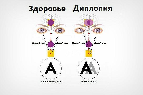 Диплопия: причины развития, симптомы и возможность лечения двоения в глазах