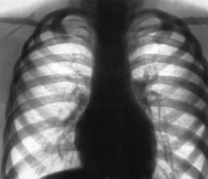 Диффузный пневмосклероз
