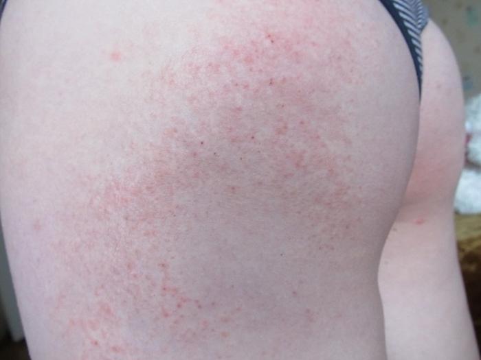 Covid по коже: симптомами коронавируса могут быть семь видов сыпи | статьи | известия
