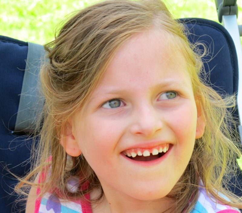 Синдром ангельмана — википедия переиздание // wiki 2