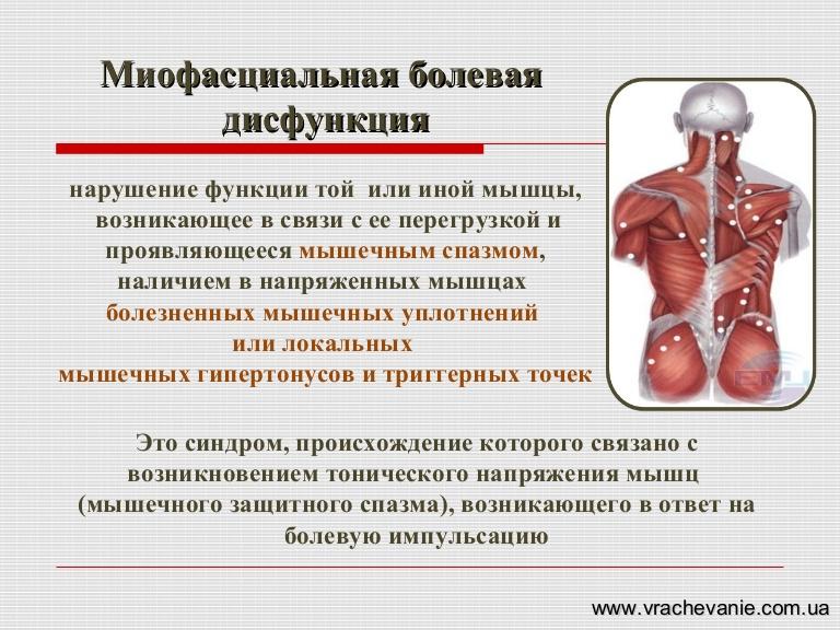 Миофасциальный болевой синдром: лица, шейного, грудного, поясничного отделов позвоночника