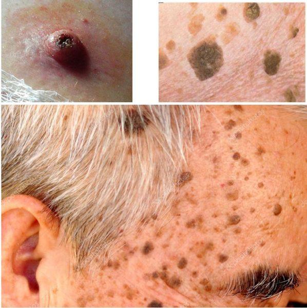 Кератомы кожи: симптомы, как выглядят (фото), методы лечения