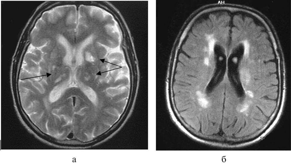 Лейкоареоз головного мозга: что это такое, симптомы, диагностика, лечение, последствия