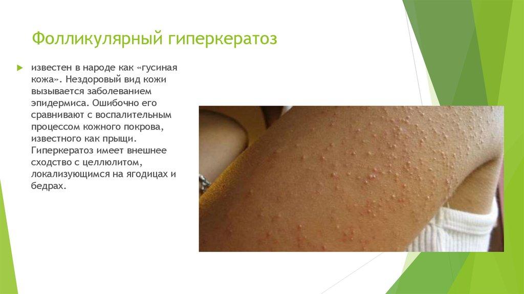 Гиперкератозы кожи
