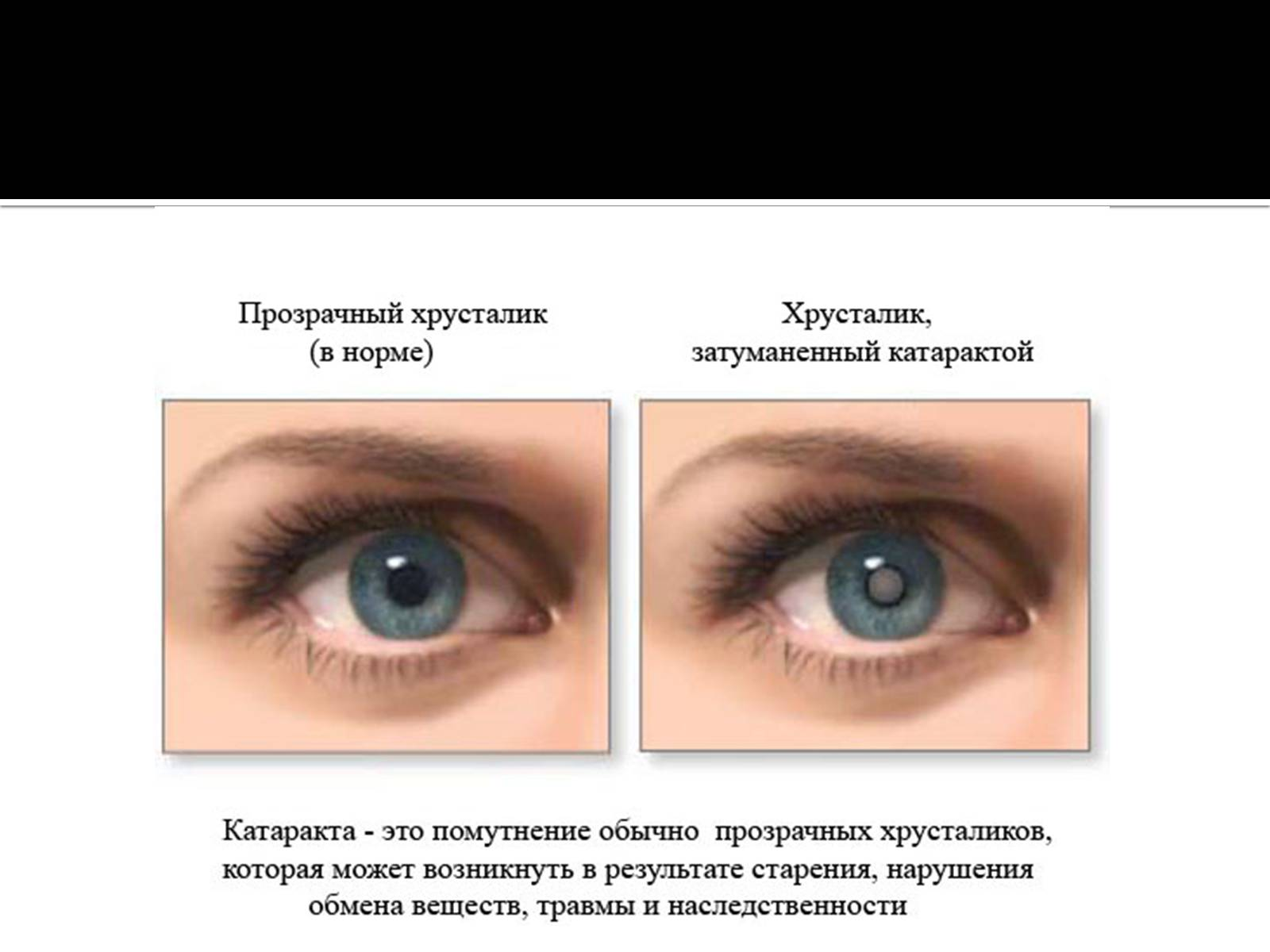 Катаракта глаза – что это такое? симптомы, причины, лечение катаркты
