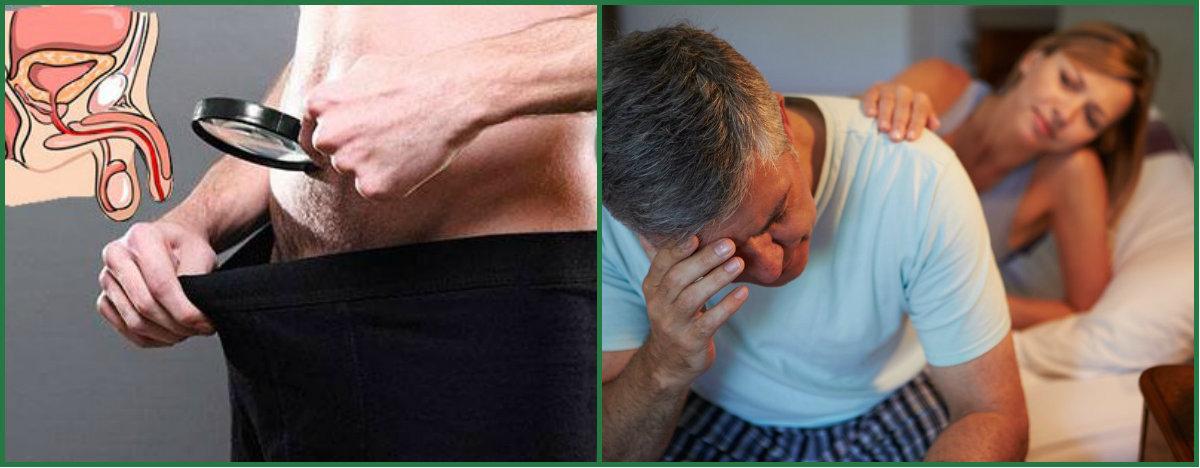 Эректильная дисфункция — википедия. что такое эректильная дисфункция