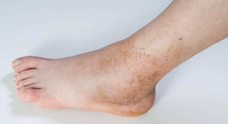 Остеомиелит ноги: причины, симптомы и лечение