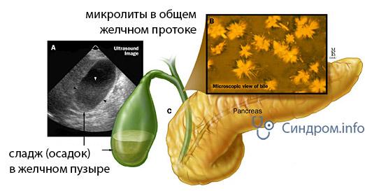 Симптомы и лечение билиарного сладжа в желчном пузыре