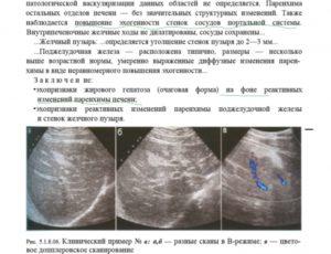 Что такое диффузные изменения печени и других паренхиматозных органов