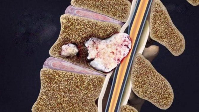 Метастазы рака