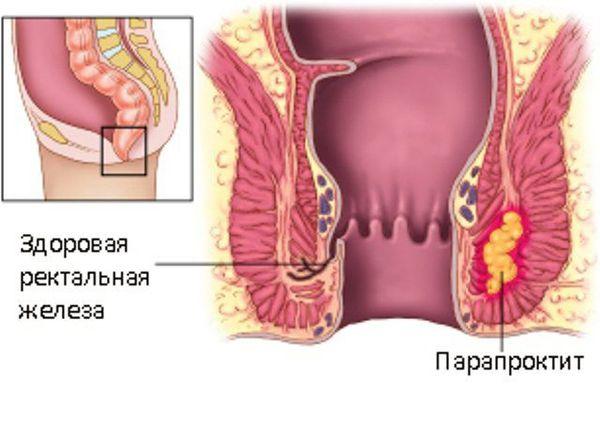 Парапроктит – острый и хронический. лечение парапроктита. операция при парапроктите.