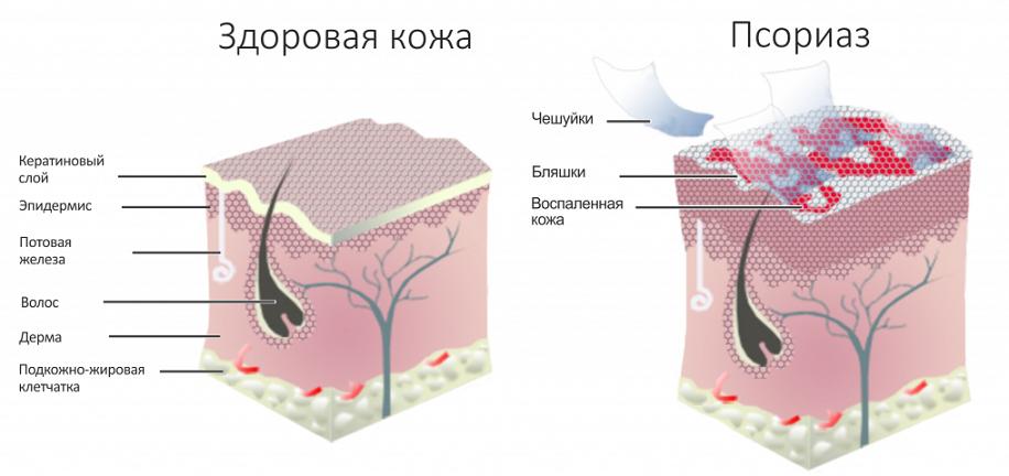 Что такое паразитоз и кто такие организмы паразиты