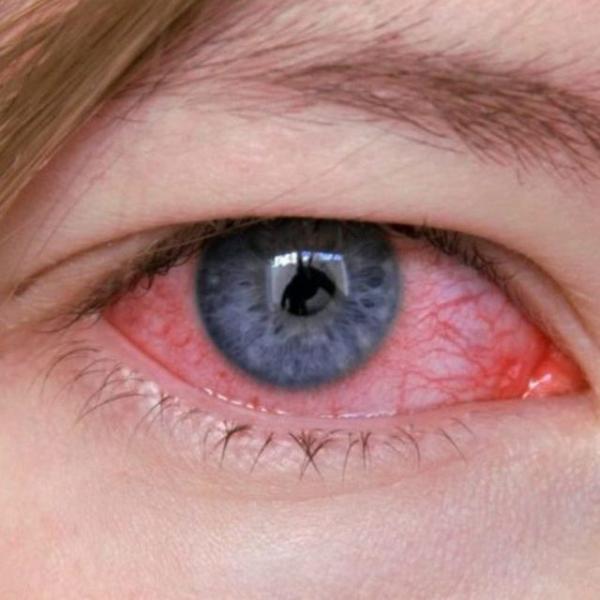 Как лечить куриную слепоту у людей?   ocularhelp