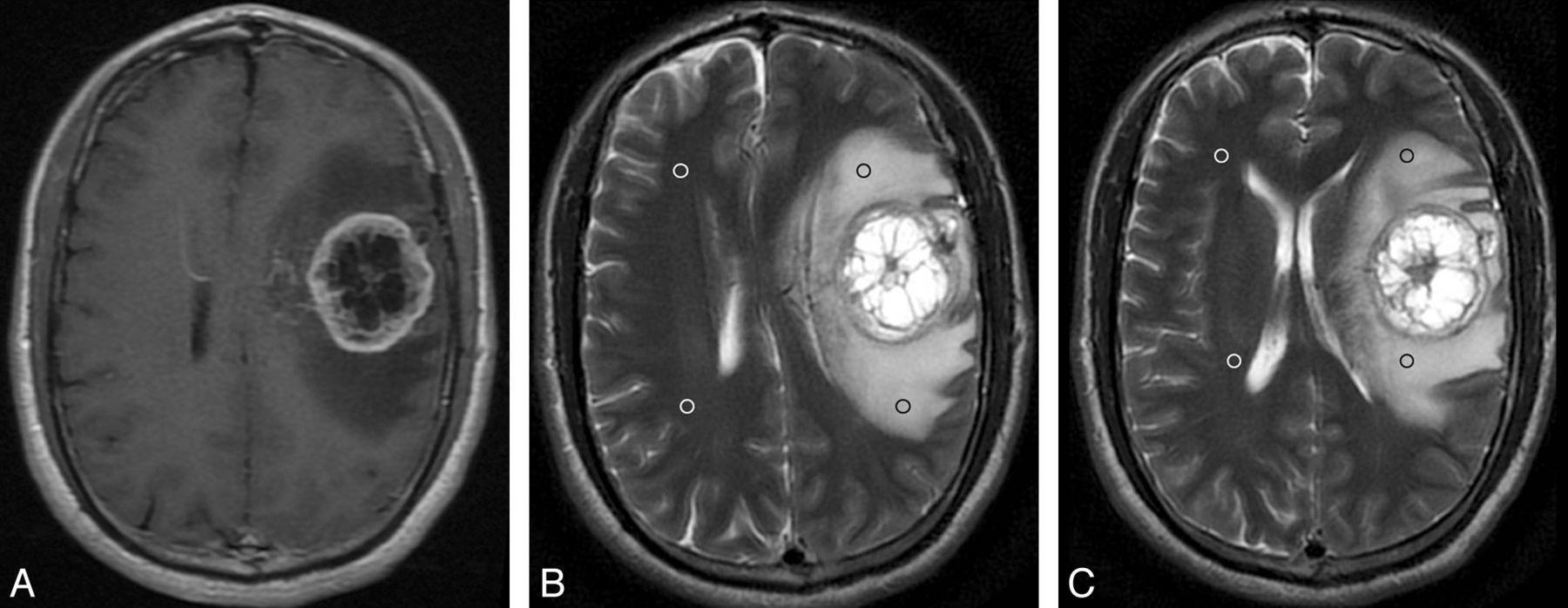 Глиобластома головного мозга: степени развития, мкб 10, фото, причины, симптомы и лечение опухоли