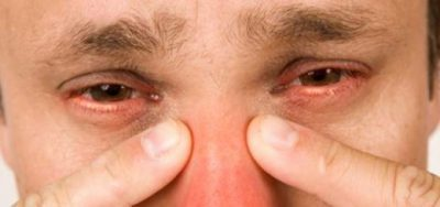 Этмоидит: что это такое, симптомы у взрослых, лечение