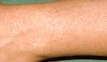 Как лечится если появились водянистые прыщи на теле
