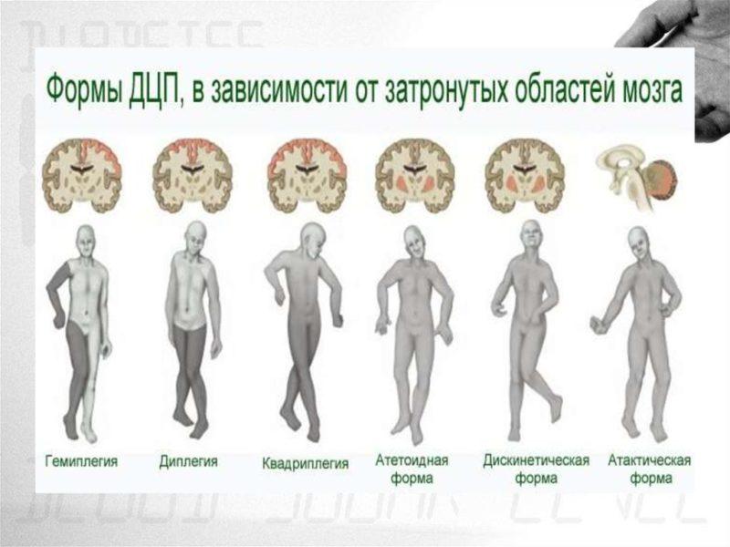 Вестибуло-атактический синдром - признаки, причины, симптомы, лечение и профилактика - idoctor.kz