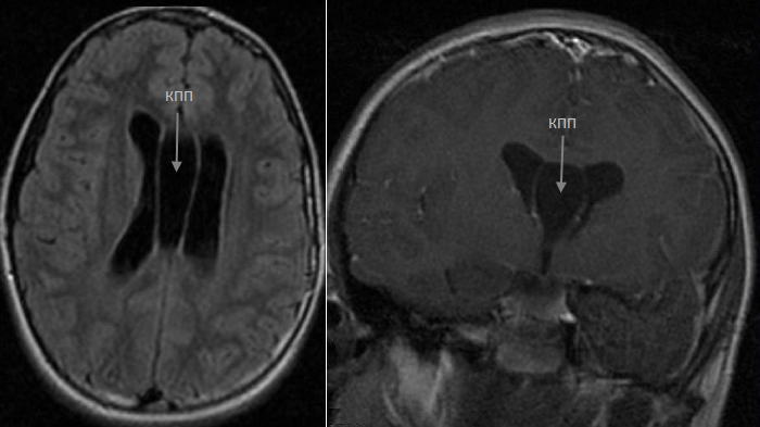 Киста головного мозга у взрослого: симптомы, причины и последствия, лечение