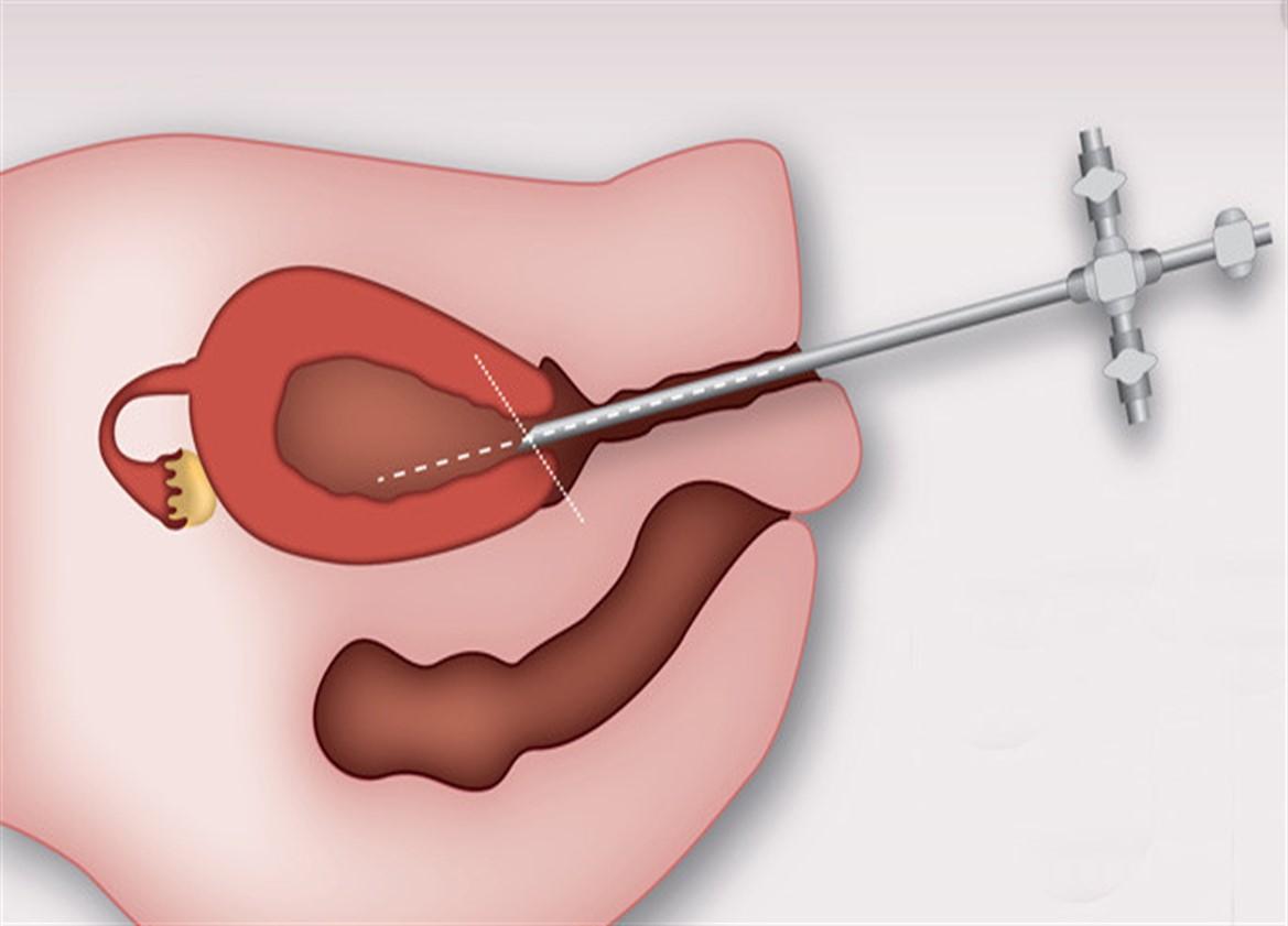 Офисная гистероскопия: как проводится процедура, что видит врач
