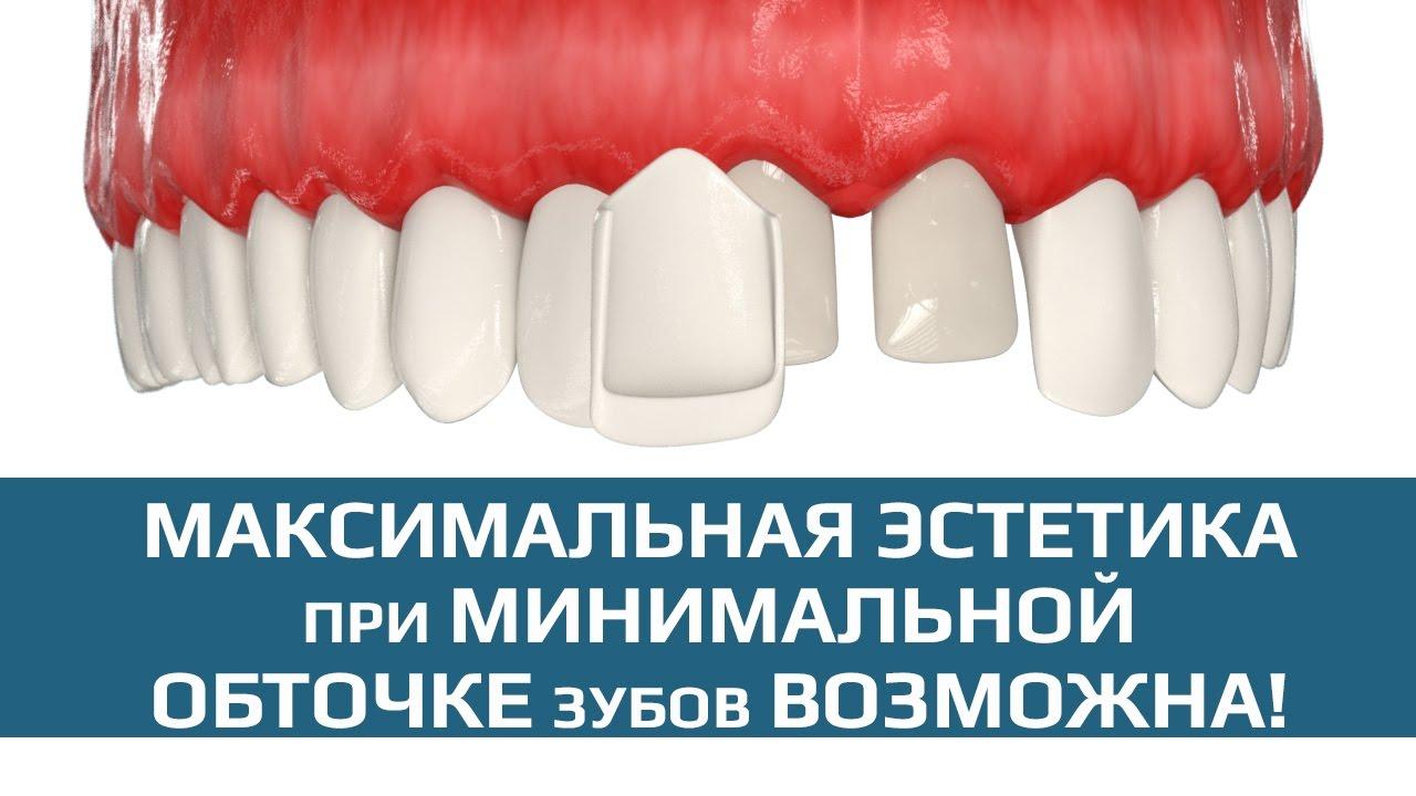 Протезирование зубов: этапы, методы, современные технологии протезирования зубов на верхней и нижней челюсти
